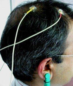 EEGElectrode